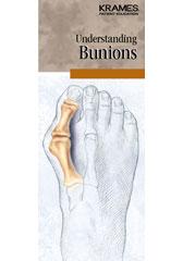 Understanding Bunions