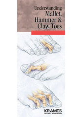 Understanding Mallet, Hammer and Claw Toes